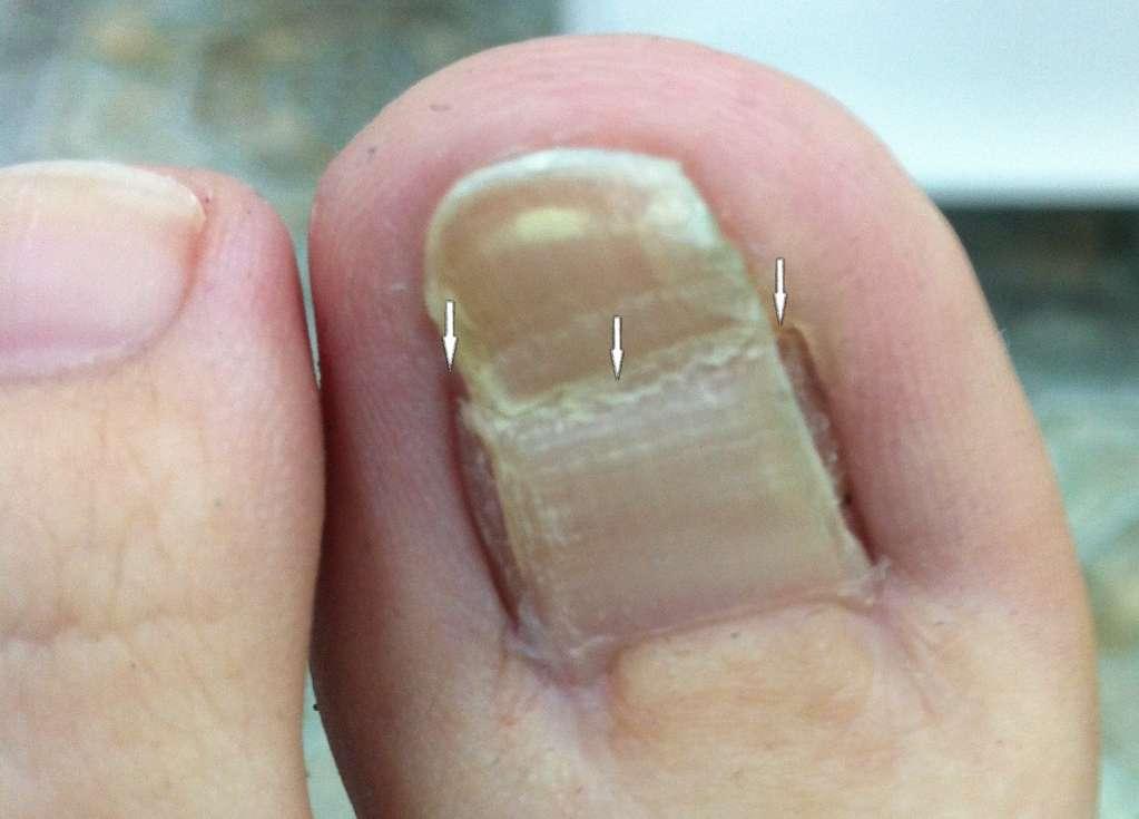Осложнения после операции вросшего ногтя
