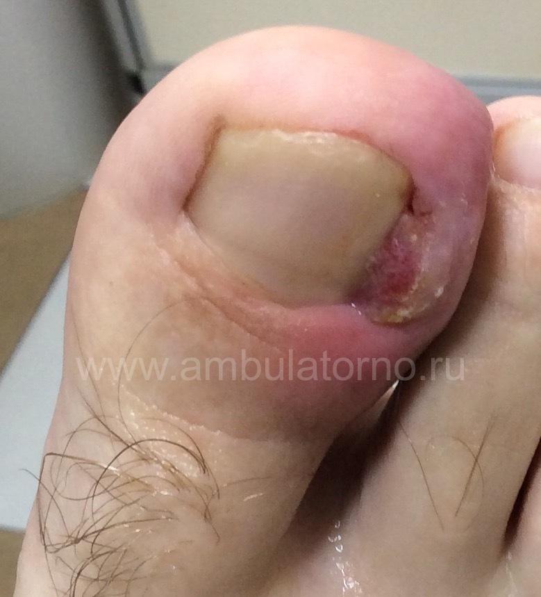 Кто врач лечит грибок ногтей на ногах врач какой